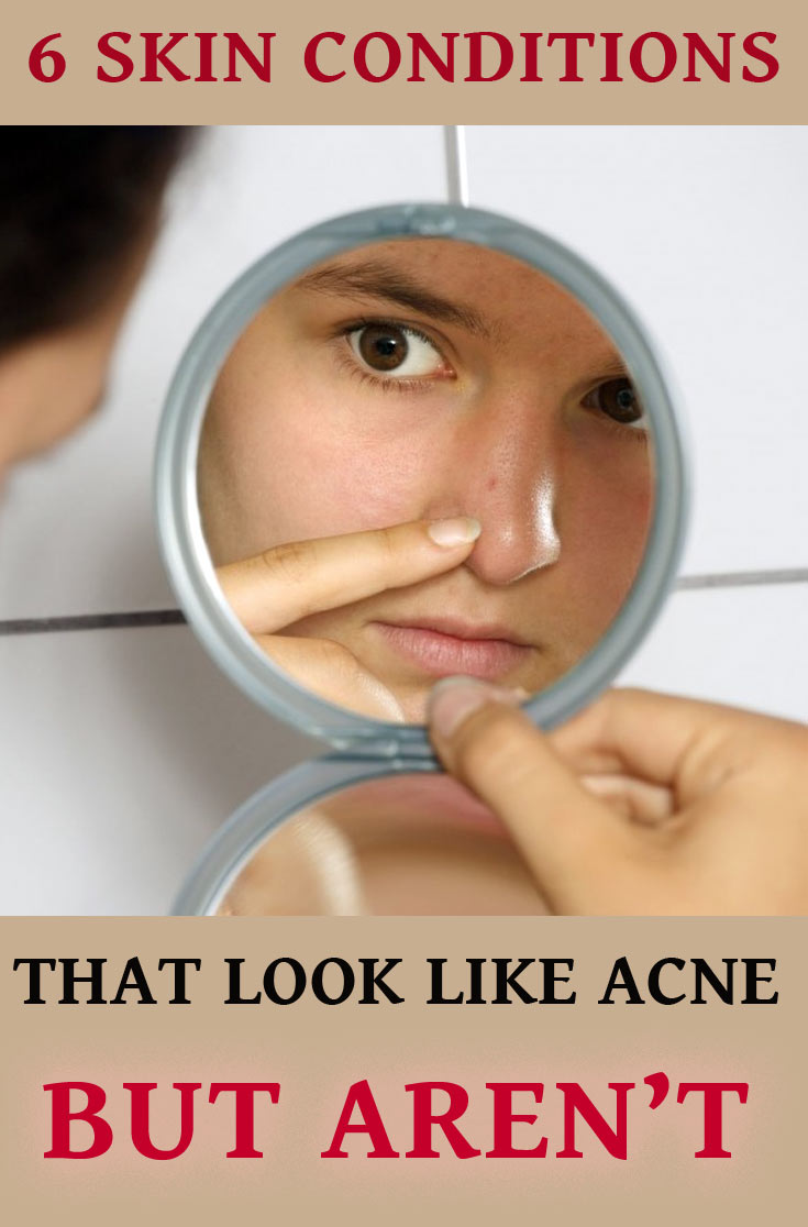 not acne
